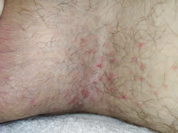 Penis pilzinfektion am Ausschlag am