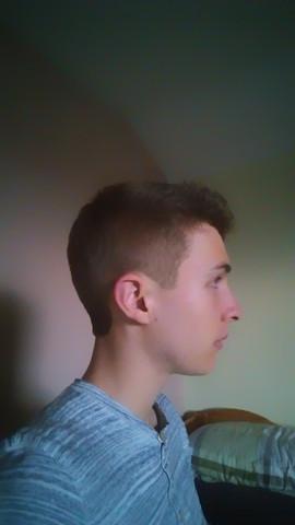 Dunkler Fleck am Ohr - (Haut, Ohr, Dermatologie)