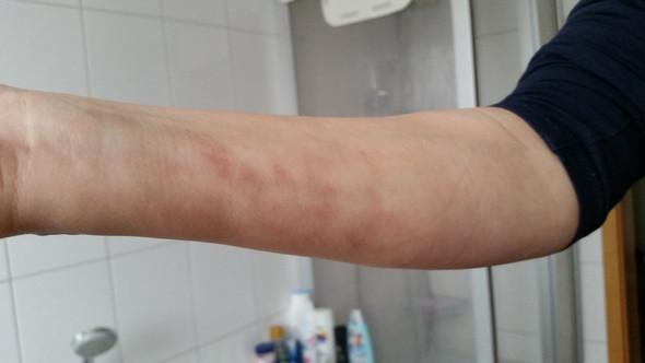 Plötzlich komische Flecken auf dem Arm, was könnte das sein?
