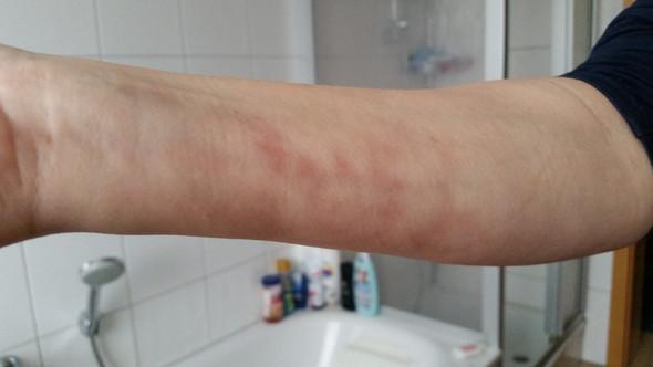 - (Haut, Flecken, Hautprobleme)