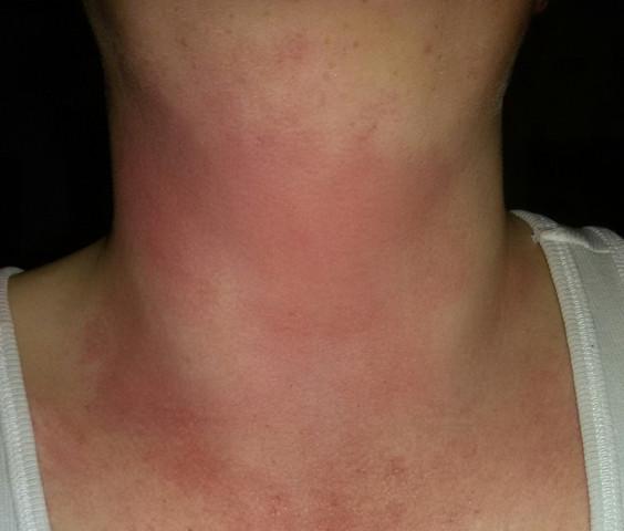 Kam plötzlich und brennt - (Haut, Ausschlag, Dermatologie)