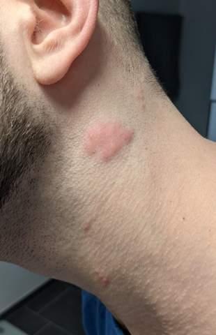 Quaddeln/Pusteln am Hals. Lymphknoten (Foto)?