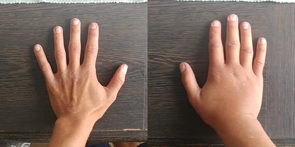Rechte Hand ist geschwollen. Könnte das Ödem sein?