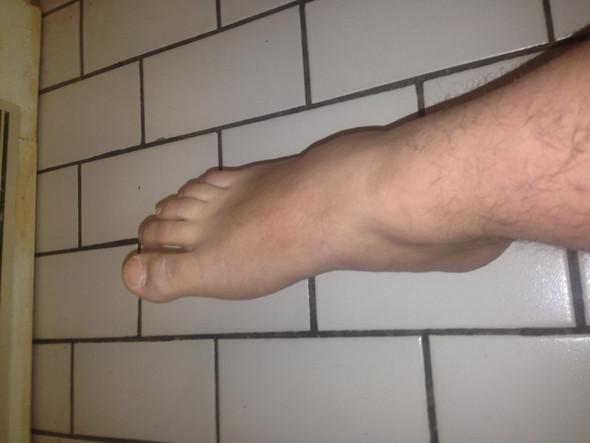 RechterFuß - (Füße, Schwellung, Verletzung)