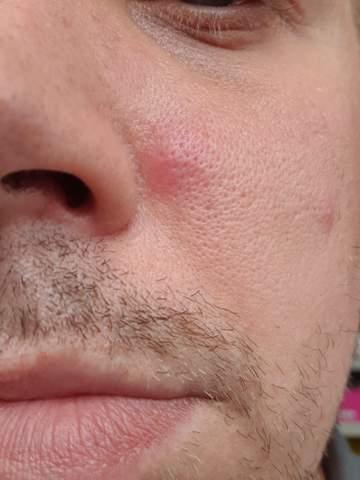 Regelmäßige Schwellung neben der Nase?