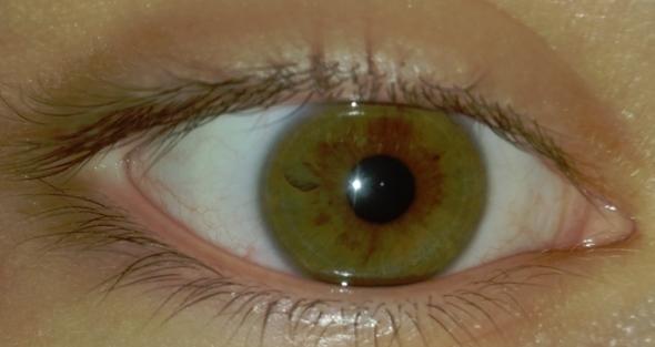 Auge - (Augen, Augenarzt, Kontaktlinsen)