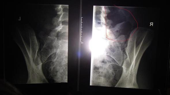 Röntgen-Bild.2 - (Schmerzen, Arzt, Angst)
