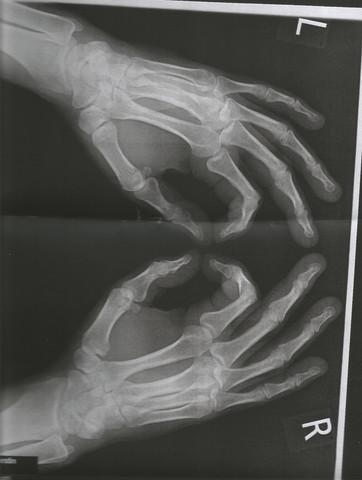 Hände - (Psoriasis-Arthritis, Röntgenbilder Hände)