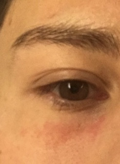 - (Haut, Medikamente, Augen)