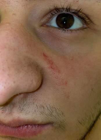 Rötung neben der Nase?