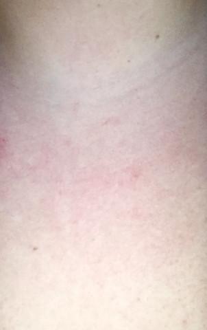 Rot und warm am Brustkorb?