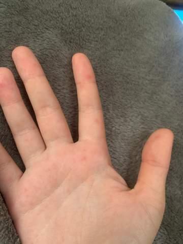 Rote Flecken auf der Hand?