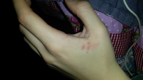rote flecken auf der hand - (Hand, rote Flecken)