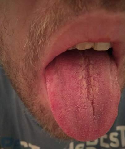 Rote Pünktchen auf der Zunge?