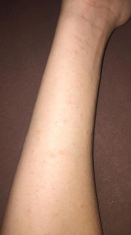 Rote punkte am Arm und rumpf?