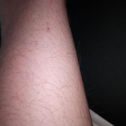 Beinhinten - (Haut, Arzt, Dermatologie)