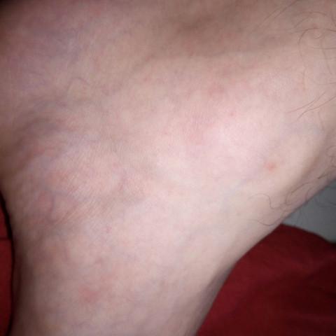 Beinvorne - (Haut, Arzt, Dermatologie)