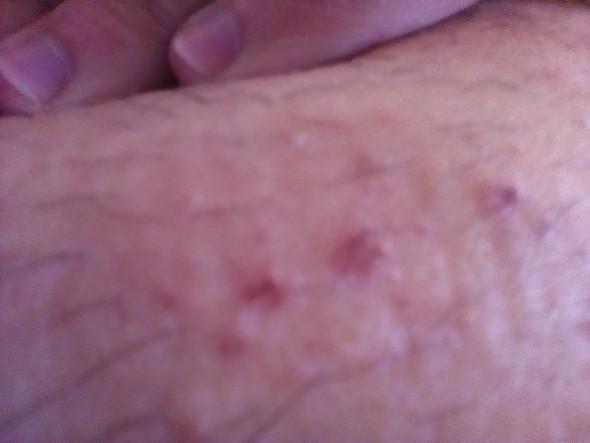 h555 - (Haut, Ausschlag, Dermatologie)