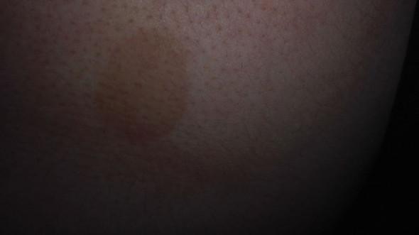 Der rote Fleck - (Haut, Dermatologie, Hautkrebs)