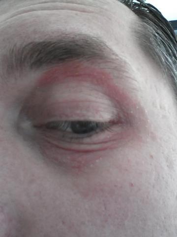 Roter Kranz um beide Augen