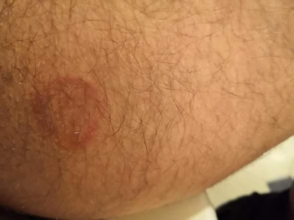 Roter Kreis um graue Haut, Gefährlich?