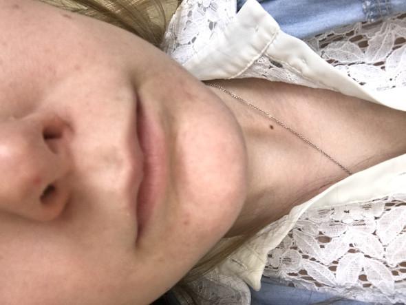Roter Punkt auf der Nase, was könnte es sein?