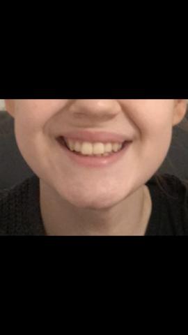 Schiefe/asymmetrische Lippen & kiefer?