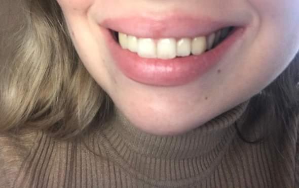 - (Zähne, Zahnpflege)