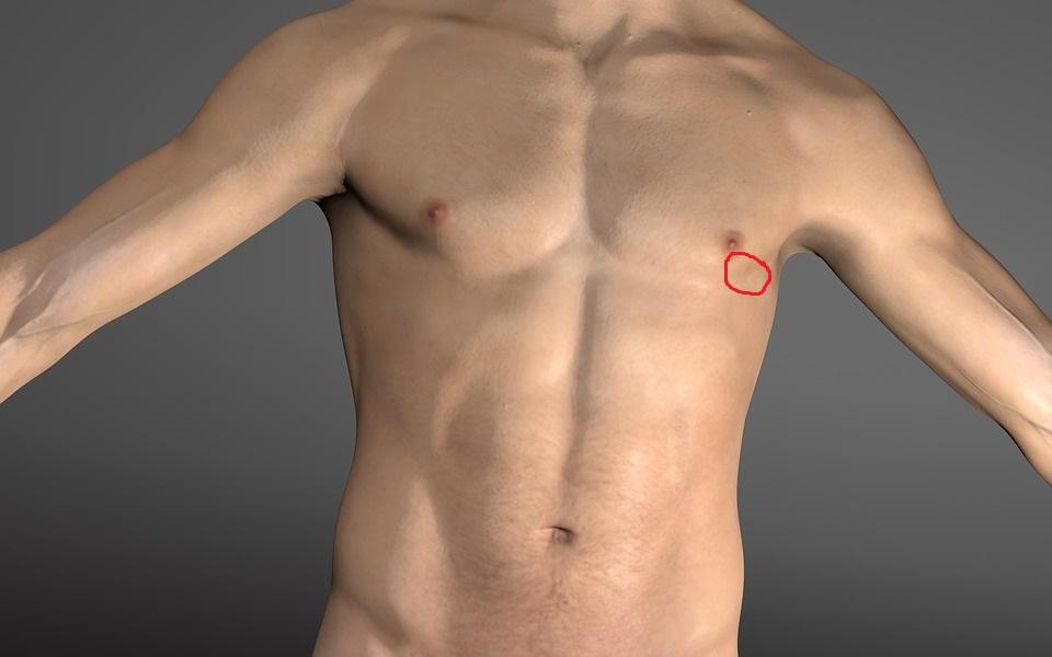 Was ist das für ein Schmerz in der linken Brust wenn man