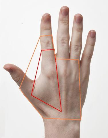 Schwellung der Fingerknöchel im Daumen