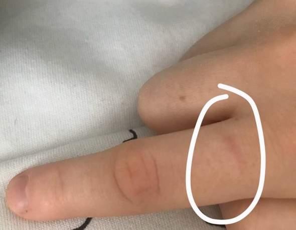 Schmerzen Zeigefinger?