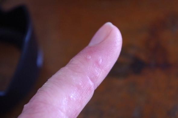 Kleiner Finger - (Hautausschlag, Blasen)