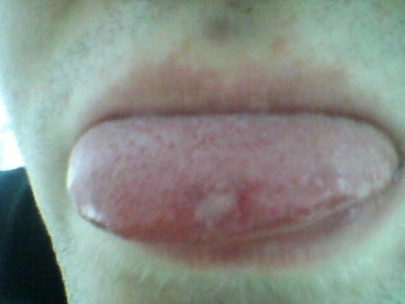 Bild 1 - (Schmerzen, Zunge, geschwür)