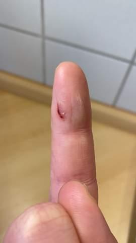Schnittwunde am Finger - noch normal?