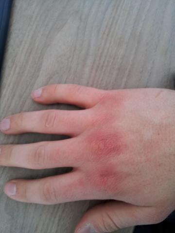 Schubweise Rötung an den Handrücken/Knöcheln