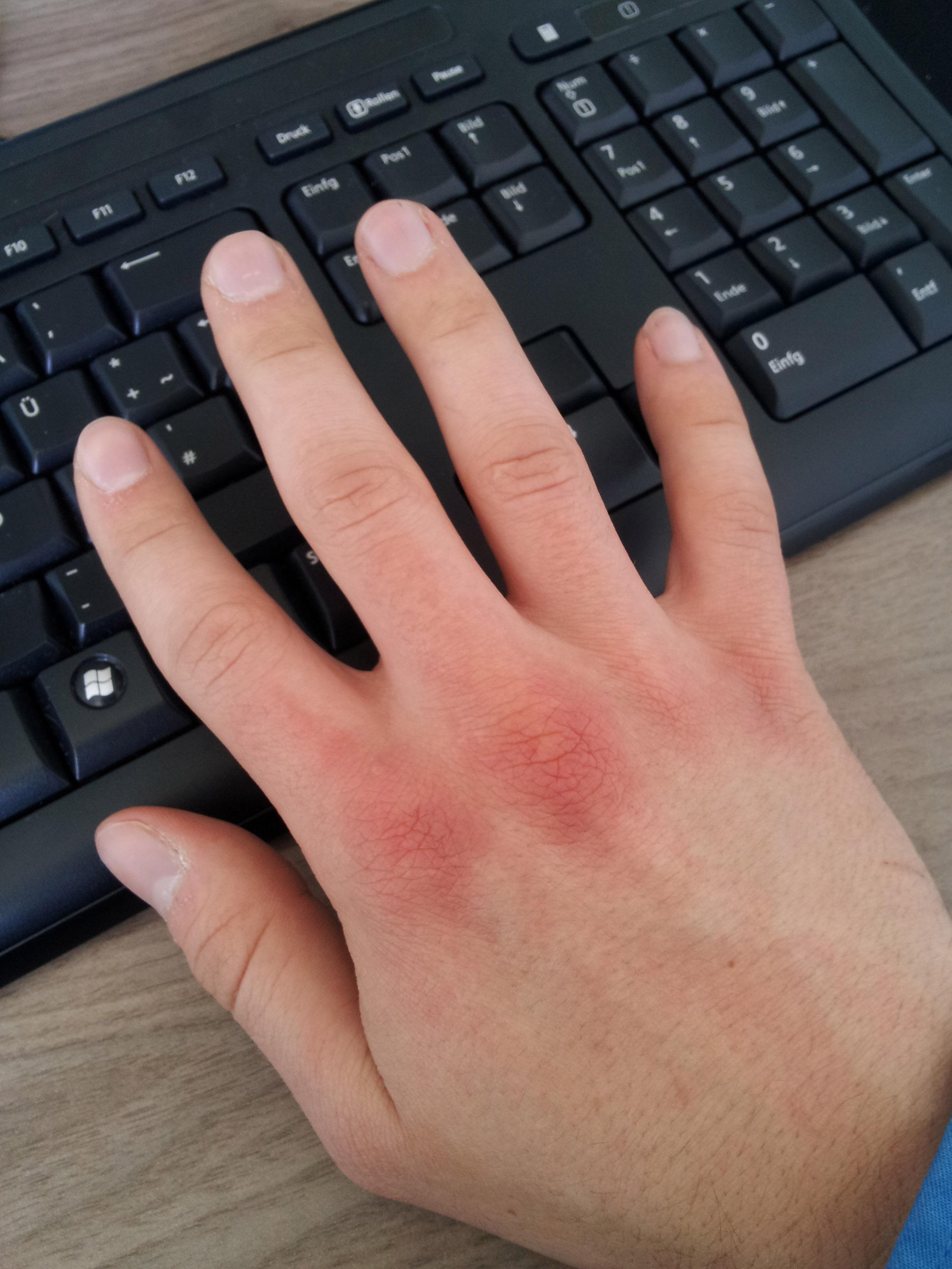 schubweise rötung an den handrücken/knöcheln (allergie, brennen
