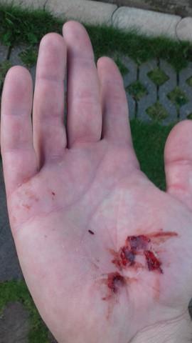 schürfwunde  - (Hand, Verletzung, Wunde)
