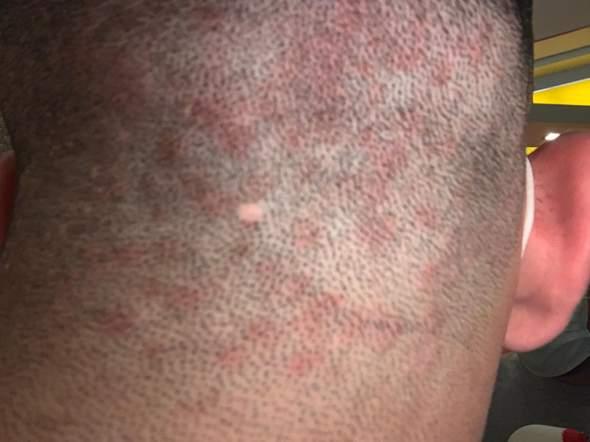 Schuppen und rote Flecken auf dem Hinterkopf?