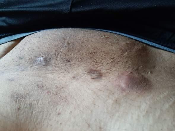 Schwarze Flecken/pickel im intimbereich? Kann mir bitte jemand sagen was das ist und was ich dagegen tun kann?