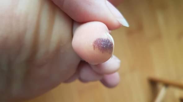 Schwarzen Flecken unter der Haut Was kann es sein?