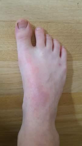 Schwellung Fußrücken nach Krafteinwirkung - Bruch?