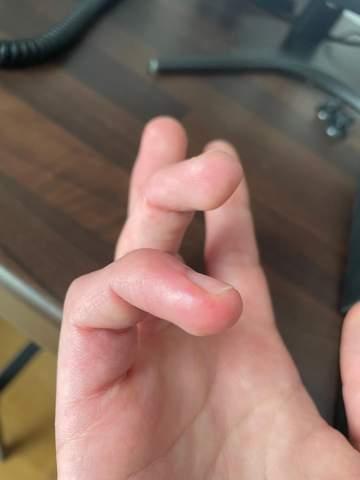 Schwellung und Quaddeln an den Fingern?