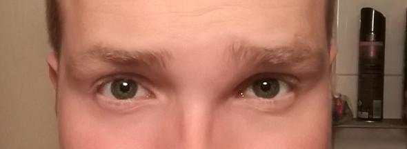 Schwellung zwischen Auge und Nase auf der linken Seite von mir aus gesehen - (Augen, Entzündung, Schwellung)