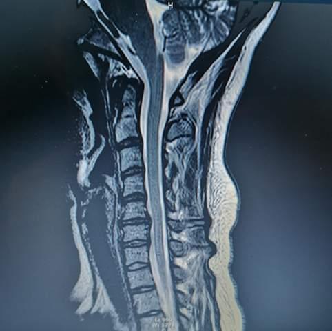 Schwindel, anhaltende Kopfschmerzen und kribbeln in der Hand durch HWS?