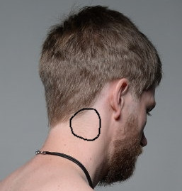 Bild 1 - (Kopfschmerzen, Wirbelsäule, Nacken)