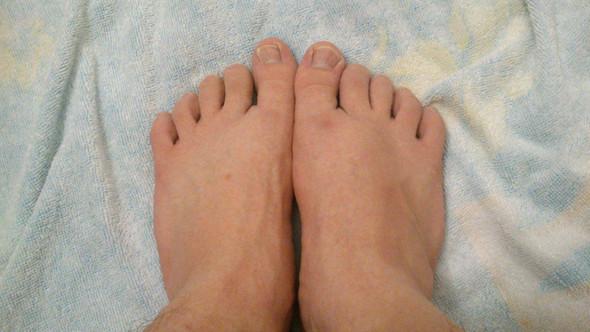 Hier kann man (hoffentlich) die Schwellung am rechten Fuß erkennen. - (Schmerzen, Füße, Orthopädie)