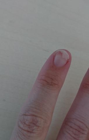 - (Finger, Fingernägel)