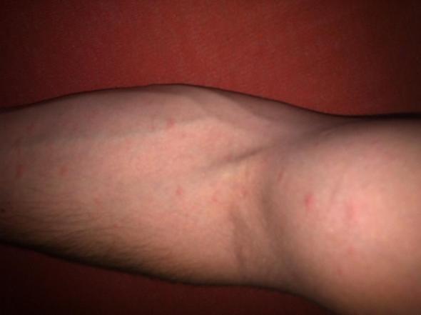 Arm - (Haut, Ausschlag, HIV)