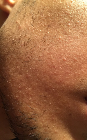 Seltsames Hautproblem?