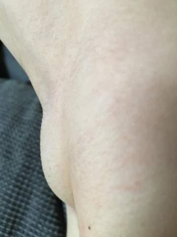 Sind das geschwollene Lymphknoten?